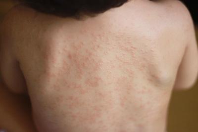 アレルギー湿疹